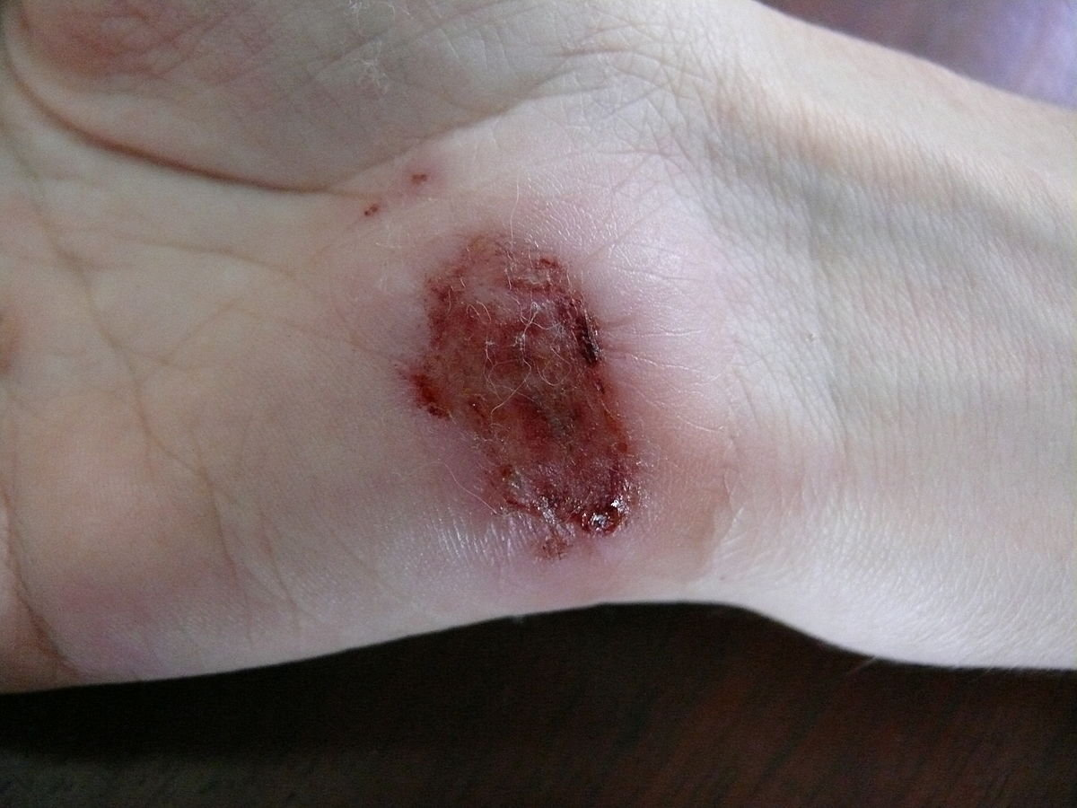 1200px-Wound_on_palm_of_hand