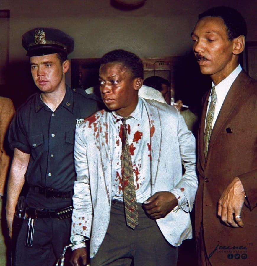 Miles Davis apr?s avoir ?t? battu par des policiers pour avoir pris une pause cigarette avec une femme blanche devant le c?l?bre club Birdland o? il se produisait, NYC 1959